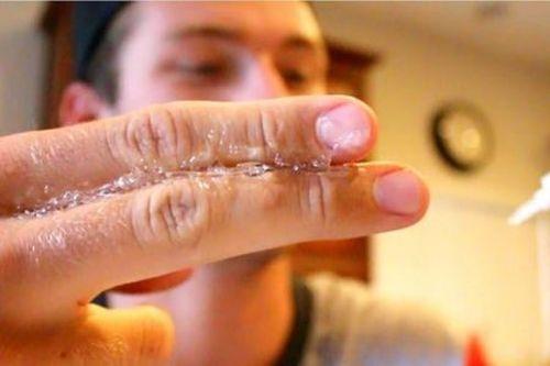 Суперклей на пальцах
